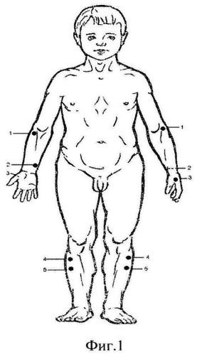 Способ восстановления функционального состояния организма спортсмена