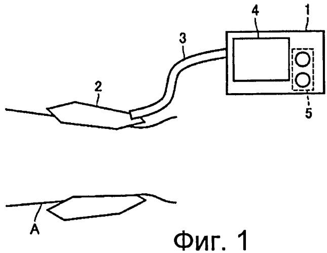 Электронный манометр для надлежащего регулирования внутреннего давления манжеты и способ управления им