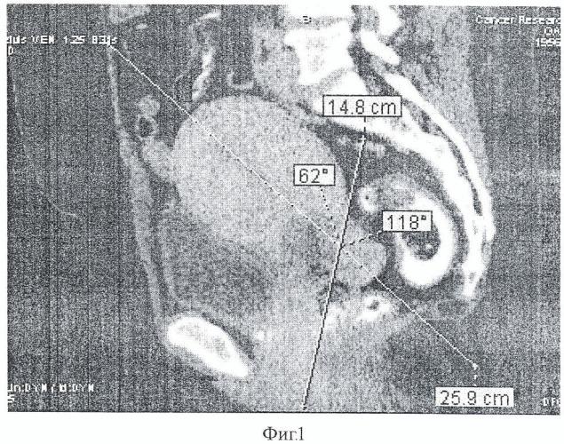 Способ дифференциальной диагностики гигантских неорганных забрюшинных опухолей и опухолей яичников и матки