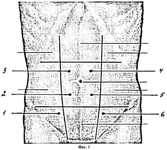 Способ оценки кровотока в артериях передней брюшной стенки