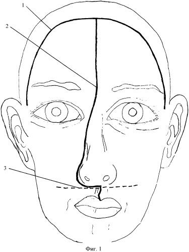 Способ доступа при операциях по поводу опухолей полости носа и центральной части основания черепа