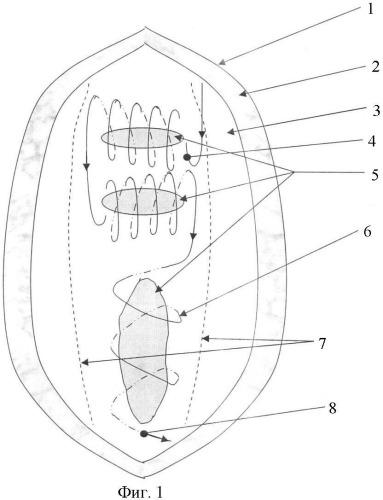 Способ устранения послеоперационных рецидивных многокамерных вентральных грыж брюшной стенки