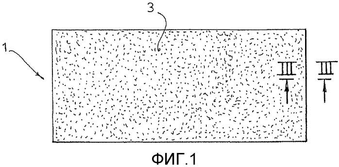 Заплатка для замещения участка стенки мочевого пузыря после частичной цистэктомии