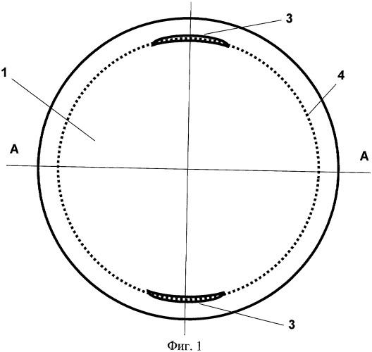 Искусственный хрусталик глаза с дозированным изменением оптической силы