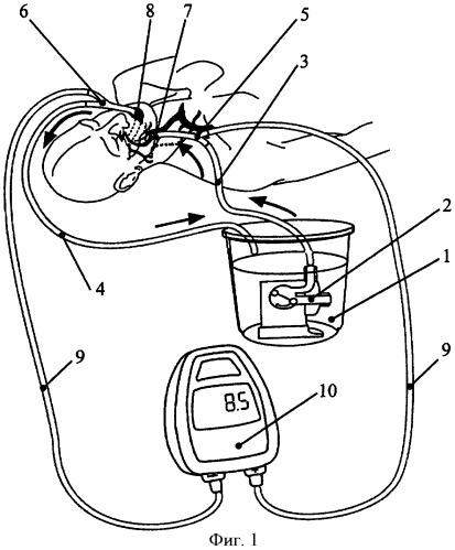 Способ оценки в эксперименте гемодинамики экстракраниального отдела внутренней сонной артерии человека и устройство для реализации способа