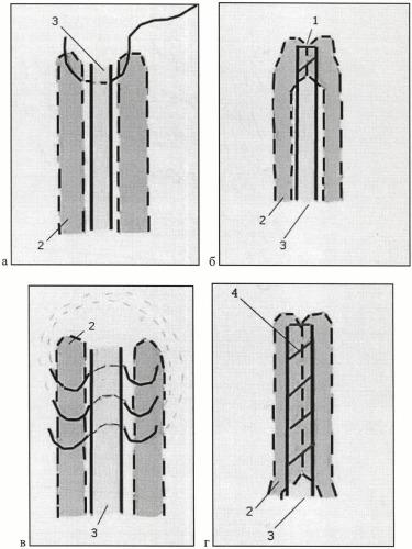 Способ инраоперационной профилактики лимфореи при радикальной мастэктомии
