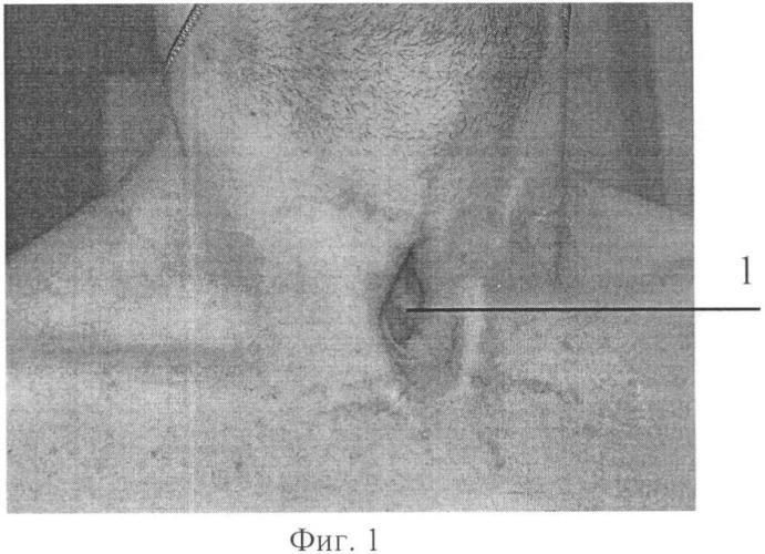 Способ хирургического лечения трахео-пищеводного свища, сочетанного со стенозом трахеи