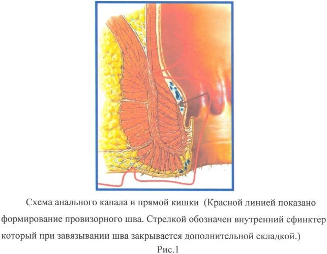 Способ трансанальной резекции прямой кишки при болезни гиршпрунга у детей