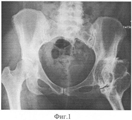 Способ моделирования большого вертела при эндопротезировании тазобедренного сустава