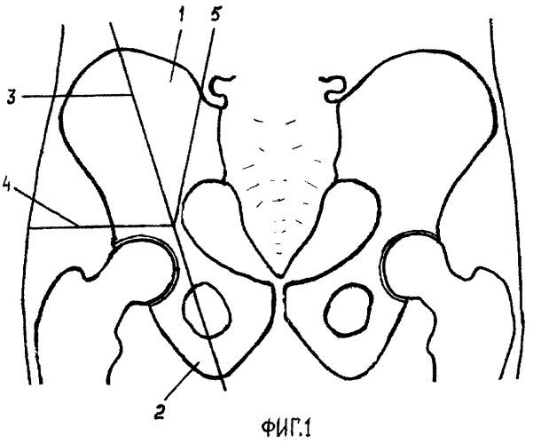 Способ лечебной блокады верхнего ягодичного нерва