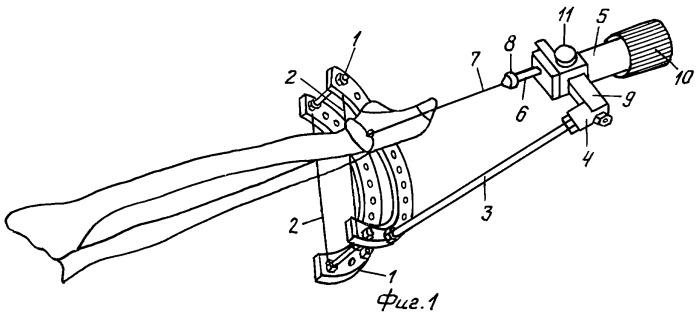 Способ восстановления движений в коленном суставе при контрактуре