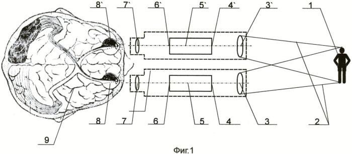 Способ наблюдения объектов и бинокулярное устройство для осуществления способа