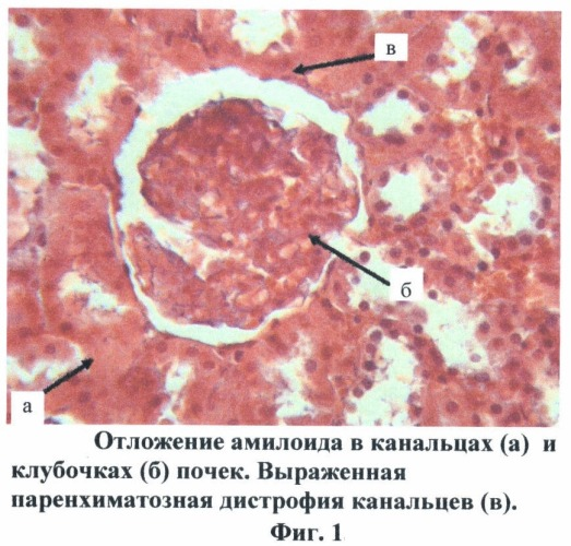 Способ моделирования экспериментального амилоидоза у крыс