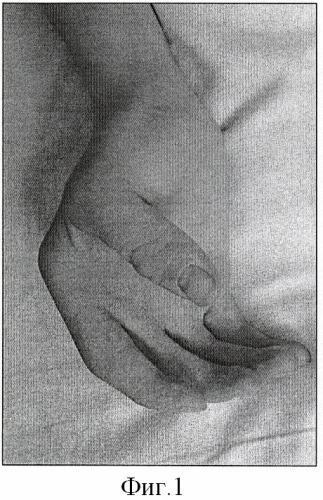 Способ устранения сгибательных контрактур и ульнарной девиации 2-5 пальцев кисти