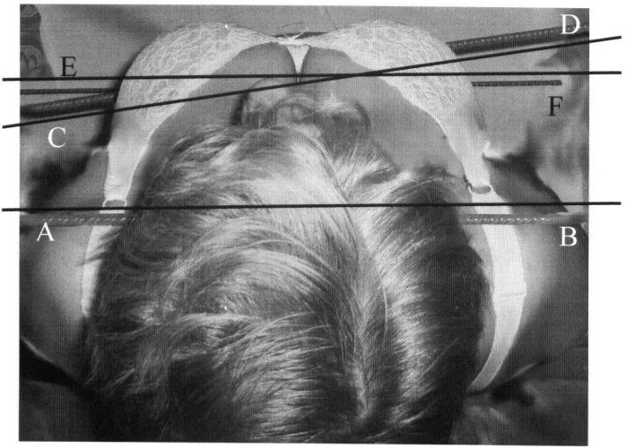 Способ диагностики величины ротации таза относительно плечевого пояса у больных коксартрозом методом фотометрии