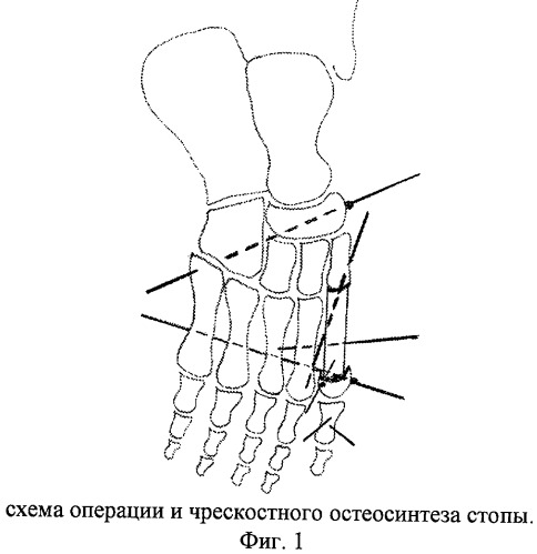 Способ оперативного лечения больных с субтотальным дефектом плюсневой кости и плоскостопием
