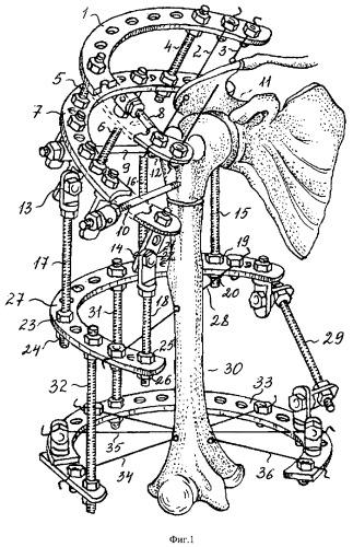 Способ лечения декомпенсированных форм привычного вывиха плеча и устройство для его осуществления