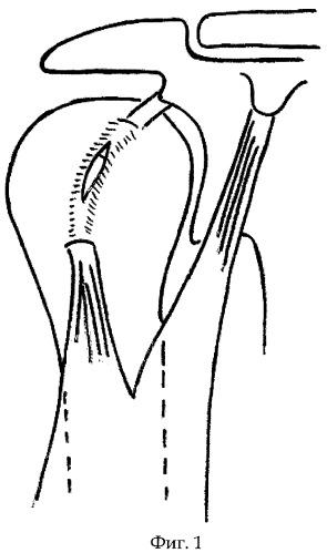 Способ оперативного лечения нестабильности плечевого сустава