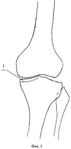Способ лечения деформирующего артроза коленного сустава