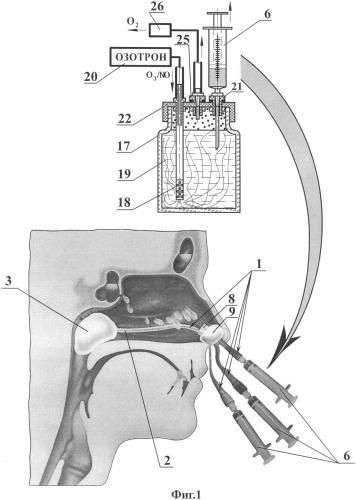 Устройство для озон/no-ультразвуковой терапии экссудативных синуситов