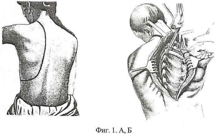 Способ видеоассистированной экстраплевральной лечебной торакопластики