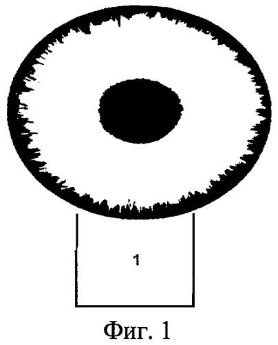Способ хирургического лечения открытоугольной глаукомы