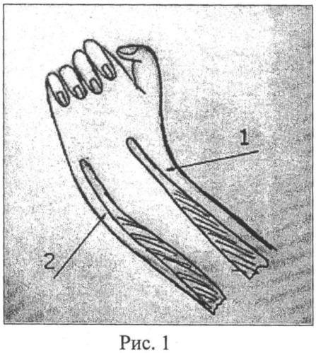Способ восстановления сухожилий разгибателей кисти у больных с артрогрипозом