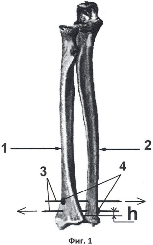 Способ оперативного лечения вывиха головки локтевой кости