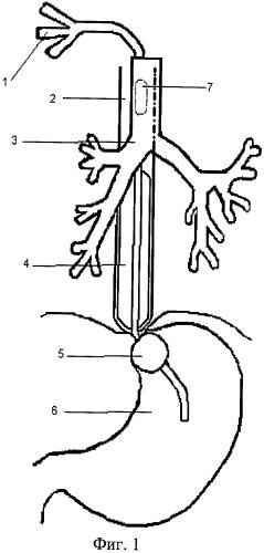 Способ временного энтерального питания пациента с пищеводно-трахеальным и/или пищеводно-плевральным свищами
