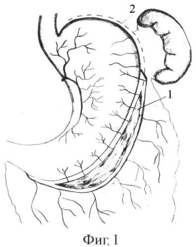 Способ вертикальной гастропластики для лечения алиментарного ожирения