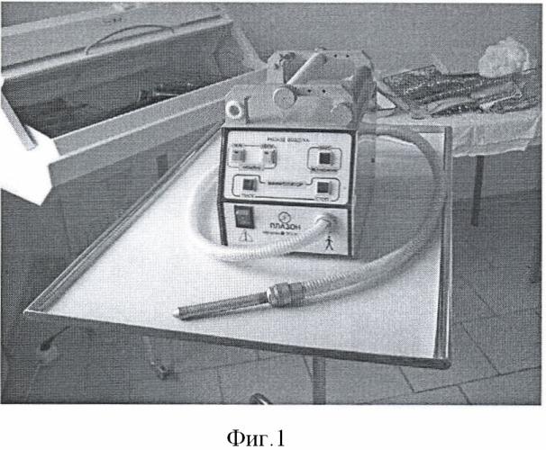 Способ обработки ложа желчного пузыря после холецистэктомии при деструктивных формах острого калькулезного холецистита
