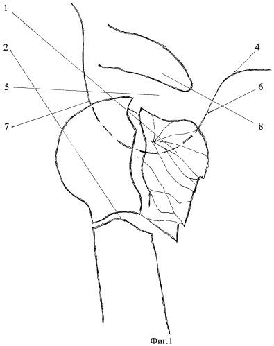 Способ хирургического лечения многооскольчатых переломов головки и/или шейки плеча