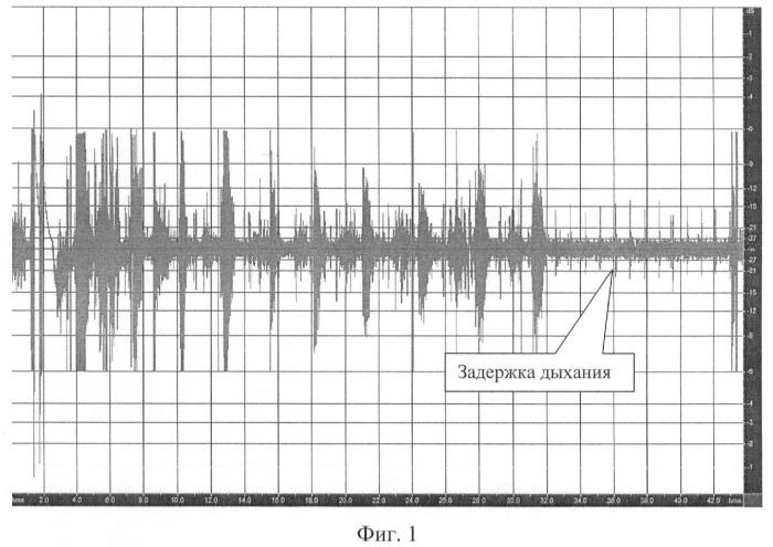 Способ фильтрации дыхательных шумов на основе задержки дыхания