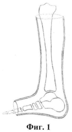 Способ лечения переломовывихов в голеностопном суставе с инверсионным подвывихом таранной кости