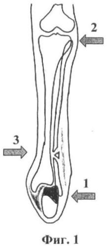Трехуровневый способ ручной репозиции и внешней фиксации отломков лодыжек при лечении переломовывихов в голеностопном суставе