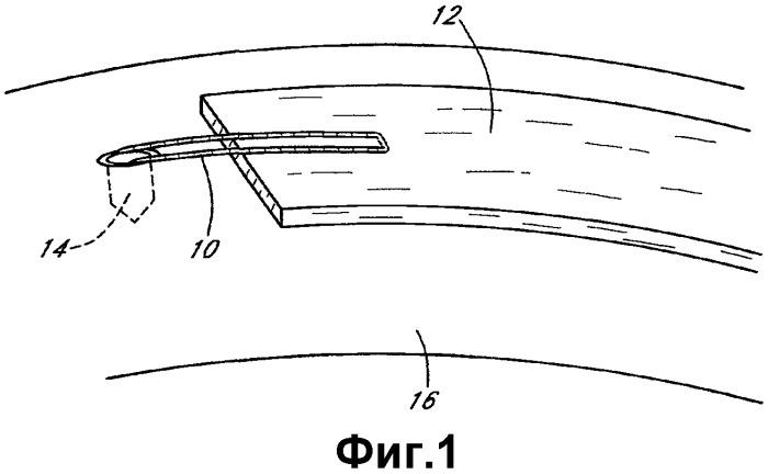 Система и способ крепления мягкой ткани к кости