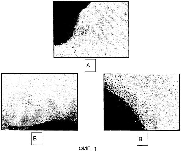 Выделение стволовых клеток/клеток-предшественников из амниотической мембраны пуповины