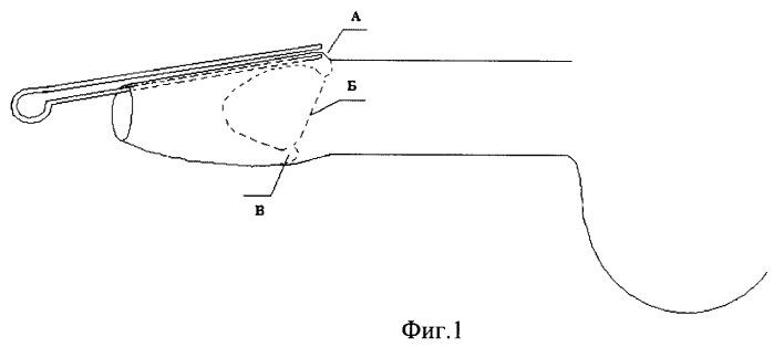 Способ измерения объема удаляемой крайней плоти при фимозе и инструмент для его осуществления