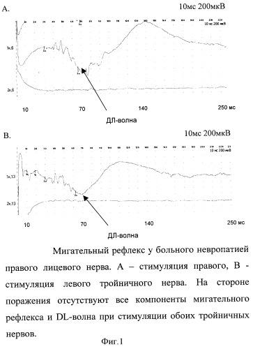 Способ диагностики состояния вегетативной нервной системы при неврологических синдромах лица и головы
