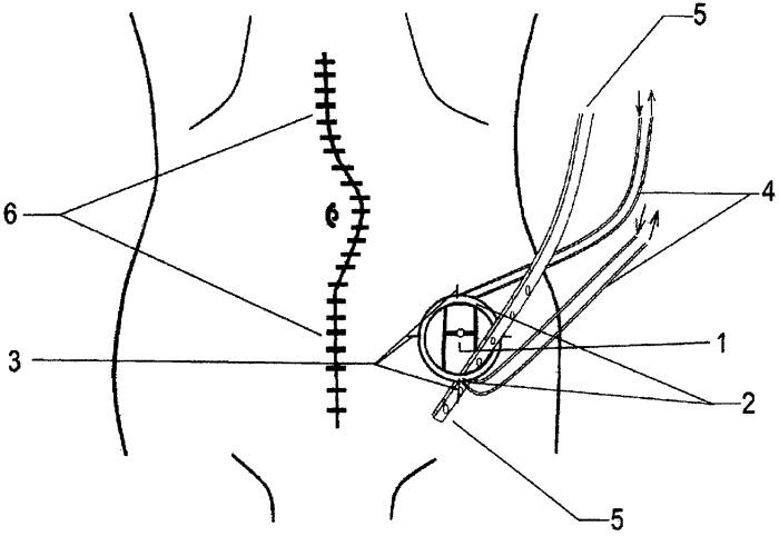 Способ комбинированного дренирования брюшной полости и раны брюшной стенки
