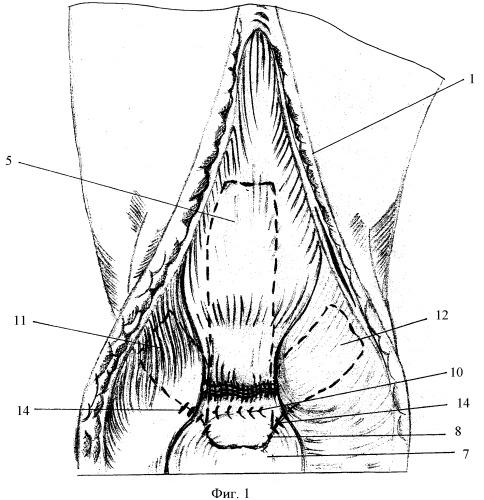 Способ пластики сухожилия четырехглавой мышцы бедра