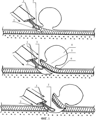 Способ трансуретральной резекции (тур) опухоли мочевого пузыря и инструмент для его осуществления