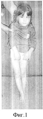 Способ лечения динамической эквино-плано-вальгусной деформации стопы у детей с дцп