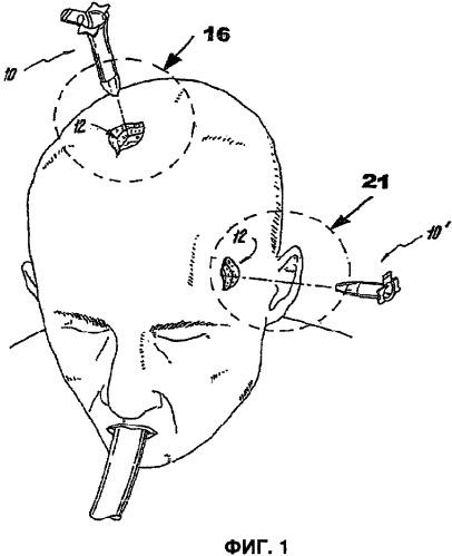 Инструменты для хирургического доступа к деликатным тканям