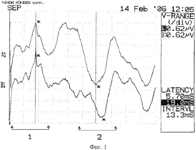 Способ электрофизиологического контроля функционального состояния ствола головного мозга