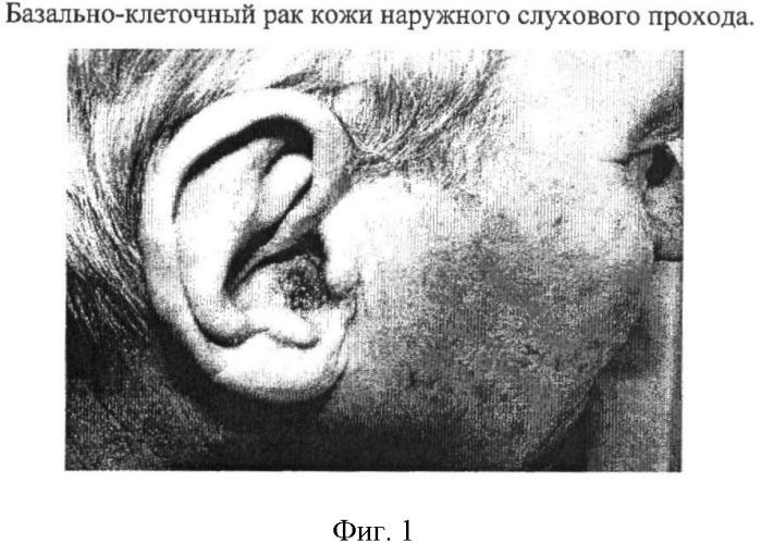 Способ пластики наружного слухового прохода