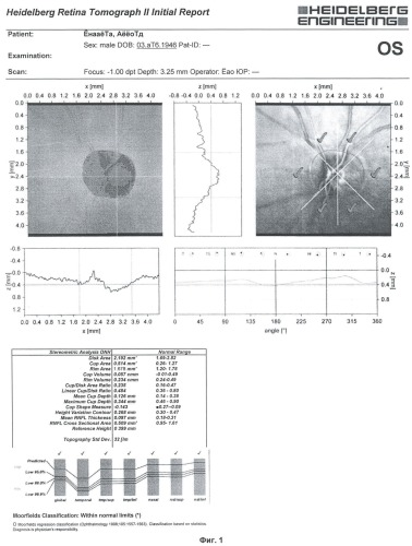 Способ диагностики ишемической нейрооптикопатии