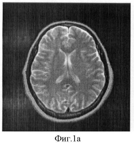 Способ оценки степени гипертонической ангиоэнцефалопатии у пациентов с гипертонической болезнью