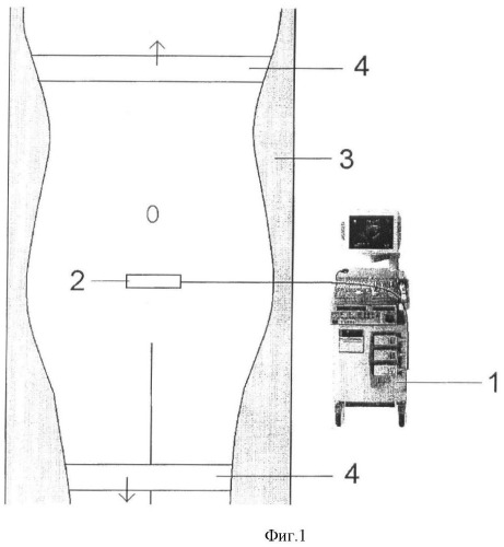 Способ диагностики дорзальной вправимой грыжи поясничных межпозвонковых дисков