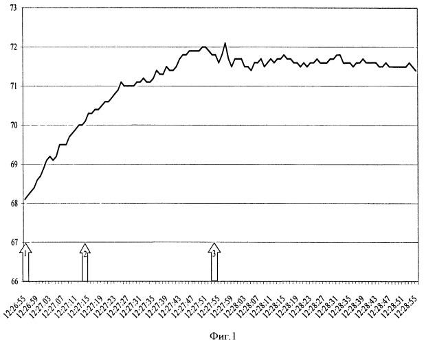 Способ контроля уровня седации при ингаляционной анестезии